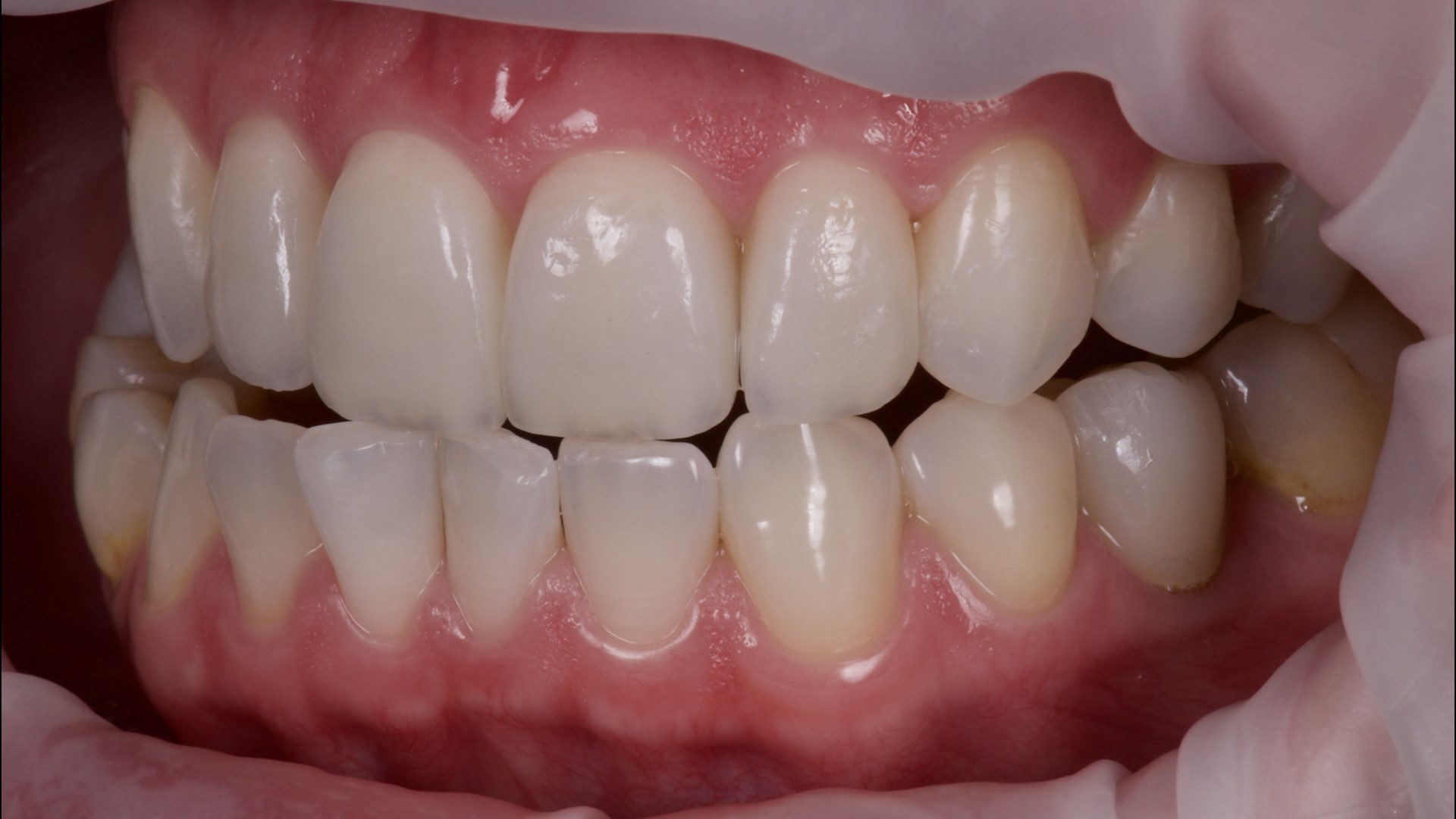 Clinical case 1 : Enhanced smile with 4 minimal prep veneers restoration on upper incisors