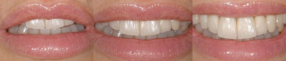 MANUELA, TOTAL MIXED REHABILITATION WITH ADDITIONAL CROWNS AND VENEERS IN FELDSPAR CERAMIC AFTER ORTHODONTICS