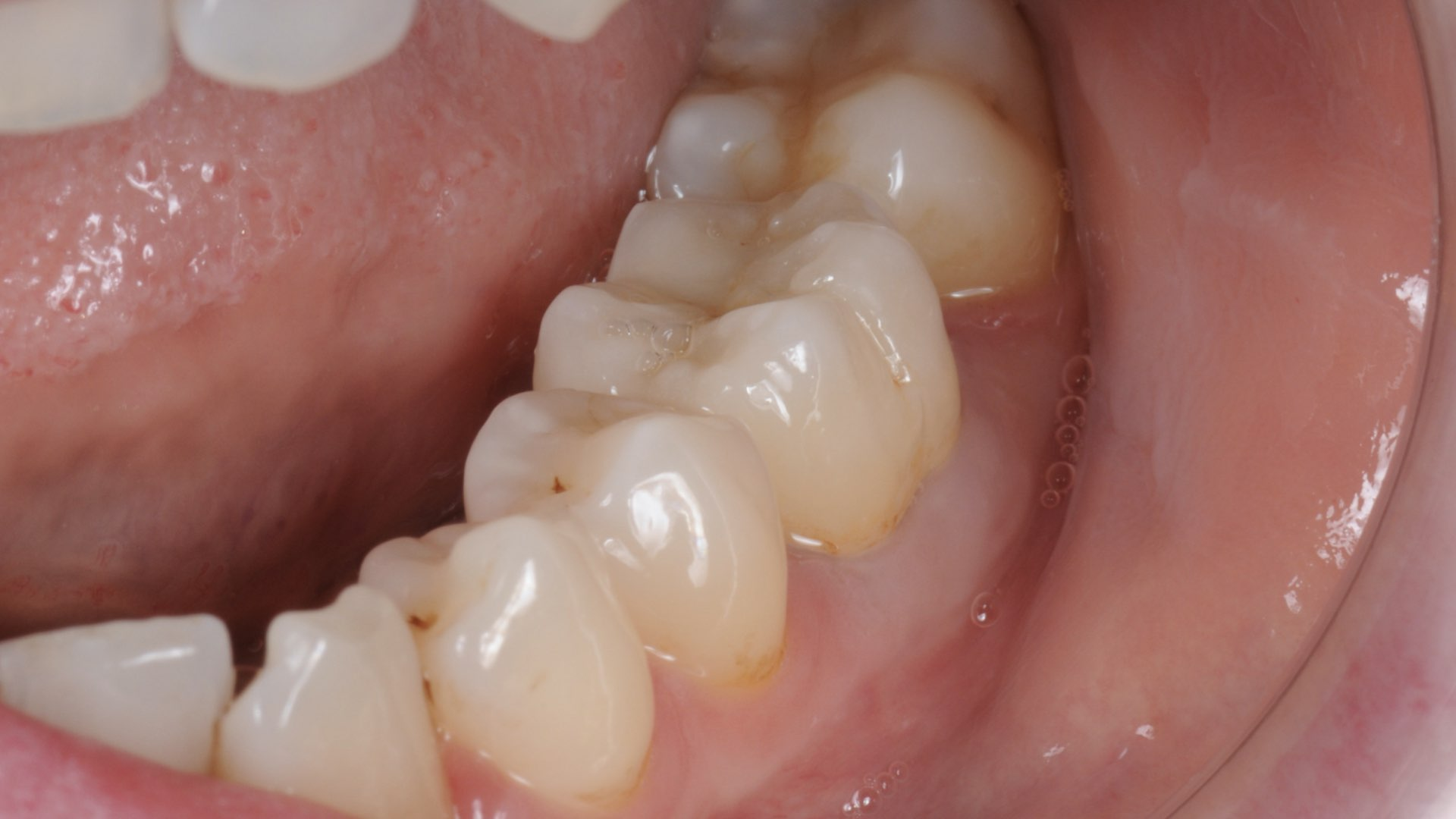 Clinical Case 4, picture 2:  Improved aesthetics with a zirconia layered restoration on first molar