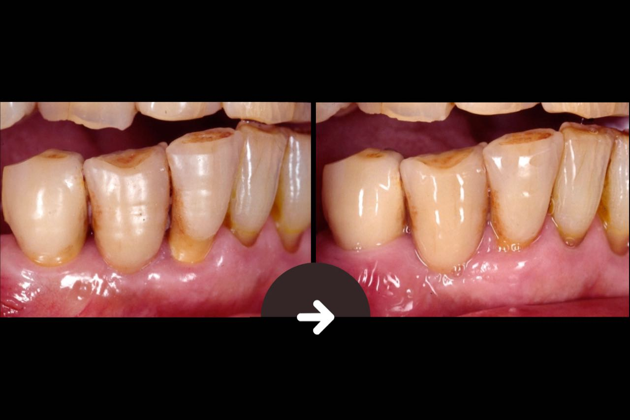 Case-8 3 metal ceramic bridge crowns. It can be seen from the photograph that the post-operative gum is restored