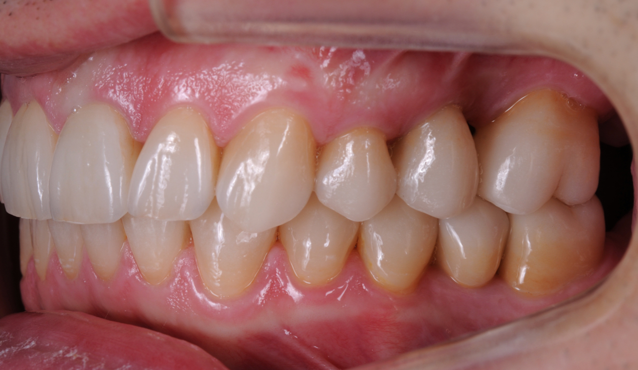 Case-2. 4 Final Case, no-prepp lower jaw, crowns on upper jaw