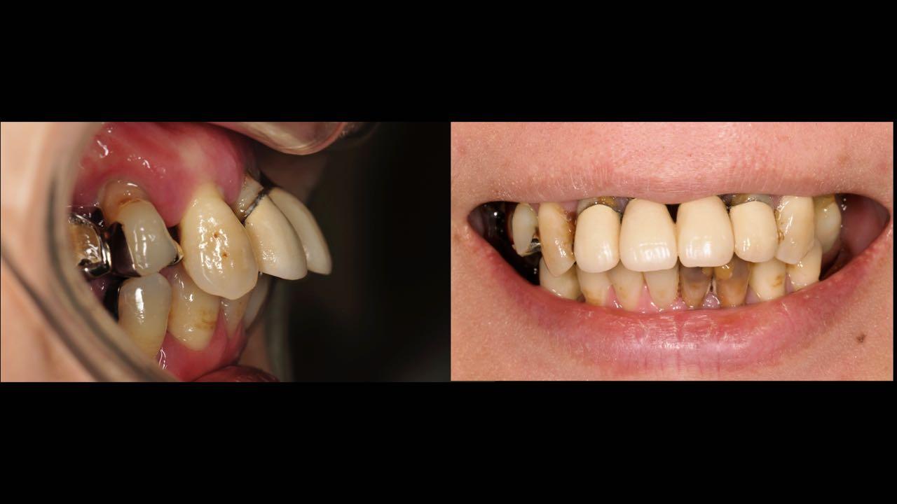 Case-4 Preoperative smile line