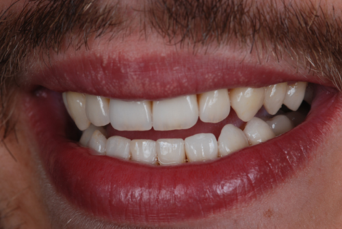 Case-4 Disilicate crowns. Smile