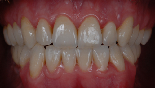 Case-4 Disilicate crowns. After