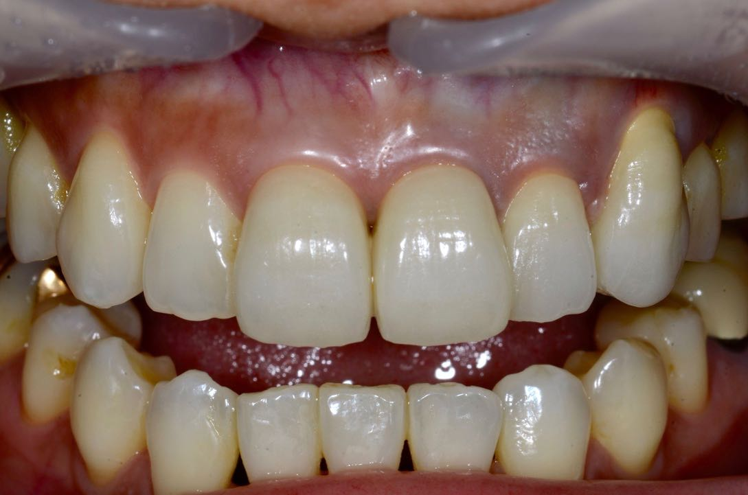 Case-5 Metal ceramic crown with four crowns connected. Position of Cervical LINE changes by giving an appropriate emergence profile
