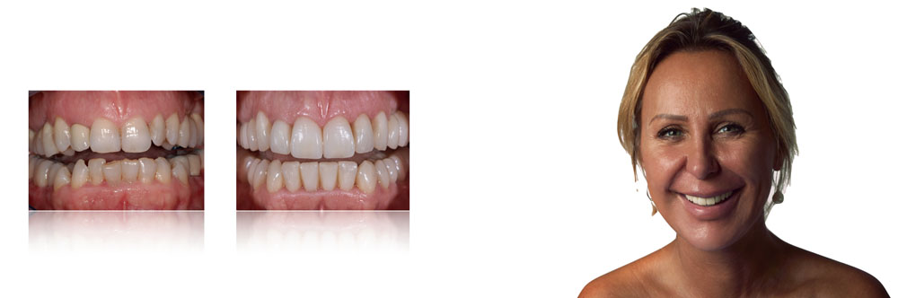 SIMONA, TOTAL MIXED REHABILITATION WITH ADDITIONAL CROWNS AND VENEERS IN FELDSPAR CERAMIC