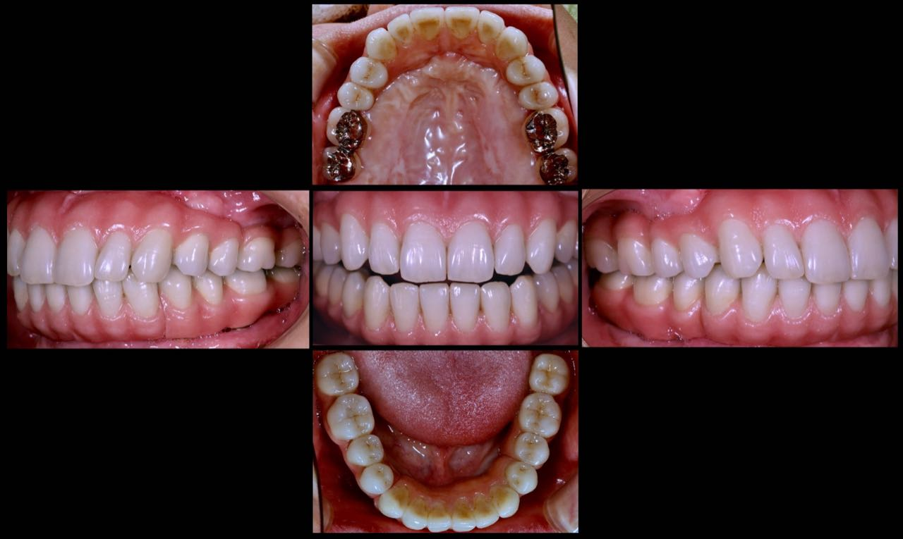 Case-4 After. Upper and lower implant bridges (CC)
