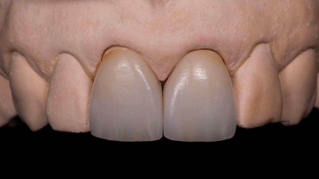 ZI-CT zirconia crown made by Hands-on