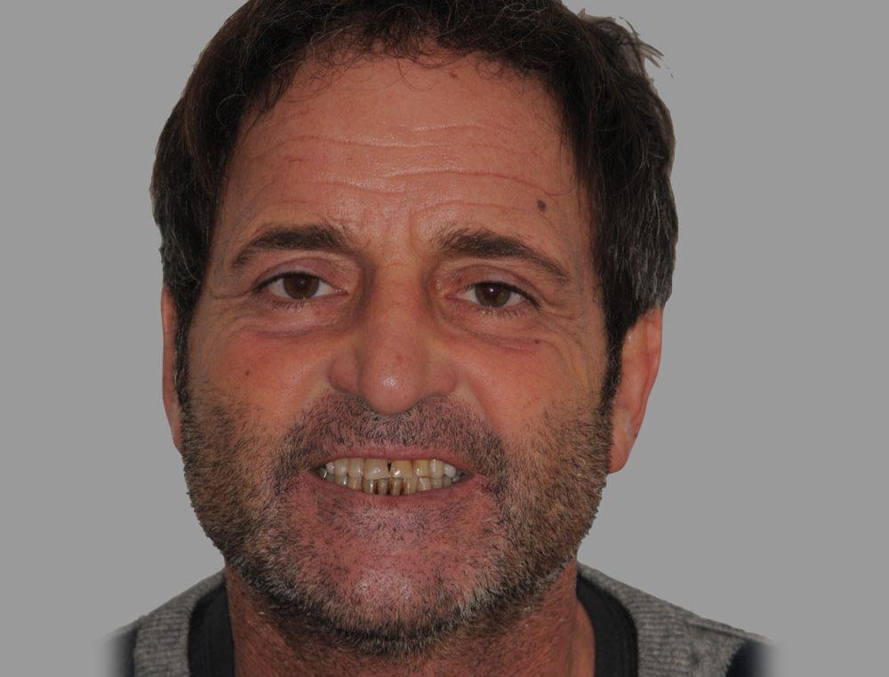 MAURIZIO, TOTAL REHABILITATION WITH ADDITIONAL FELDSPAR CERAMIC VENEERS