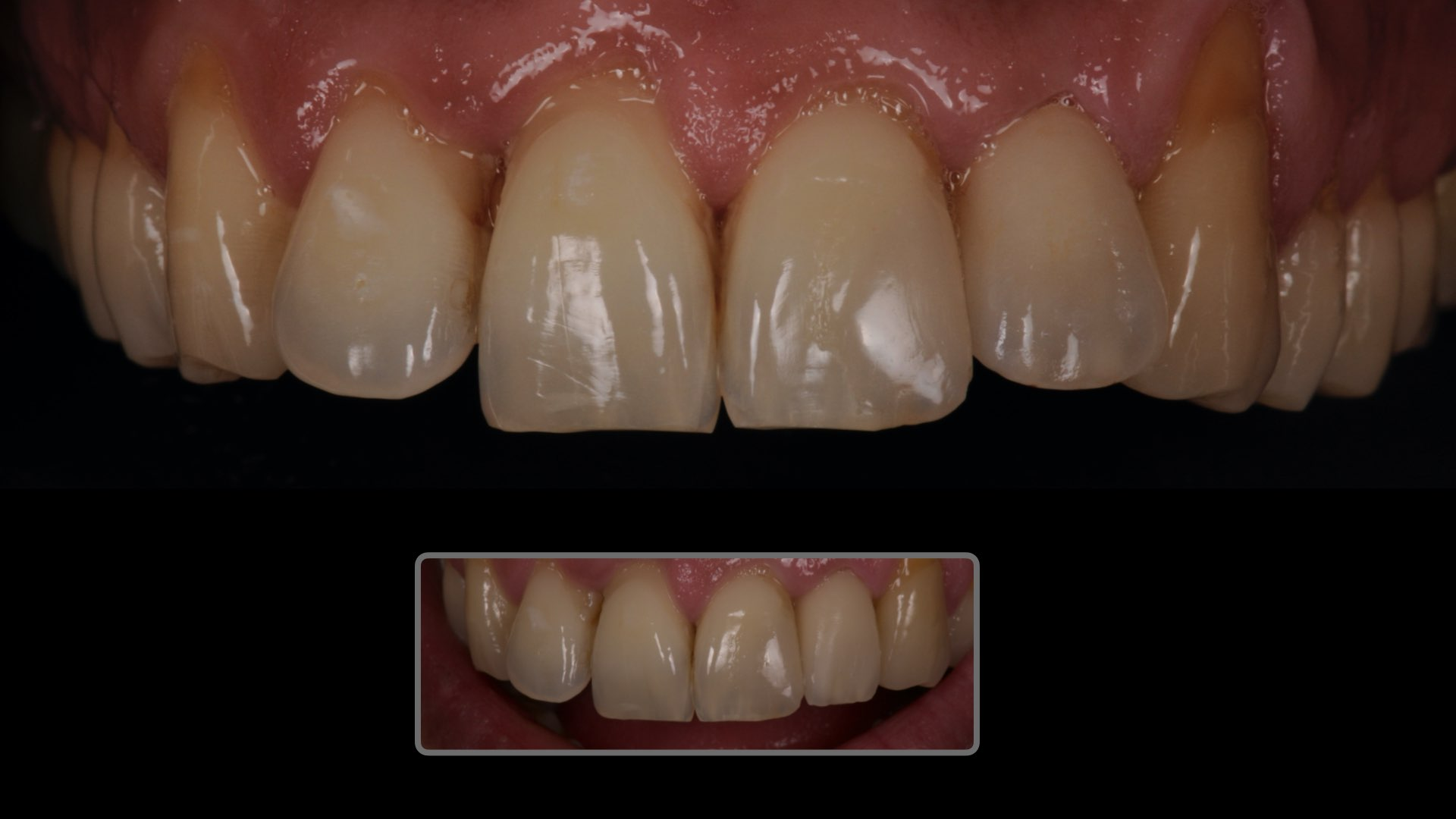 Clinical case 2 :  Improved aesthetics with a all ceramic restoration