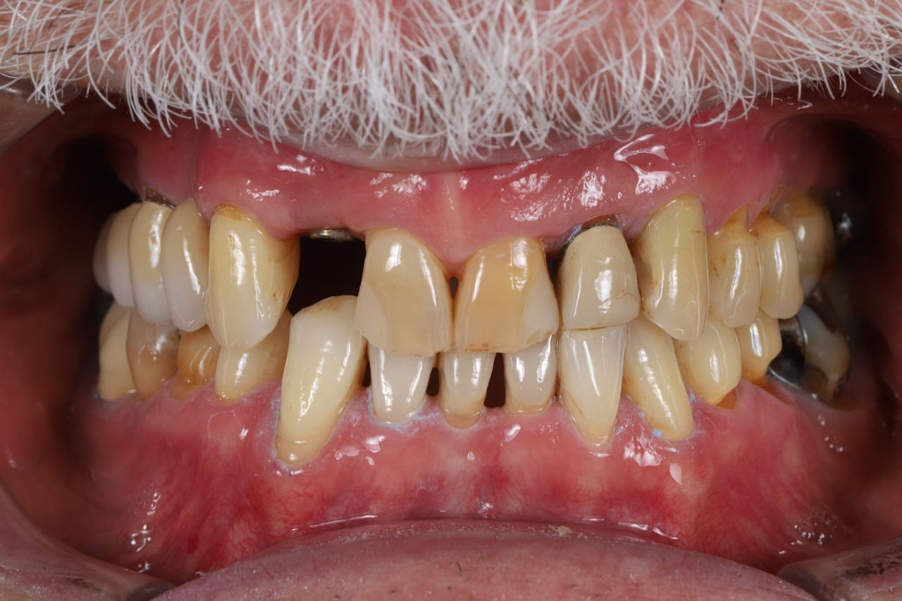 Case-2. Implant and Lithium di silikat crowns. Before .