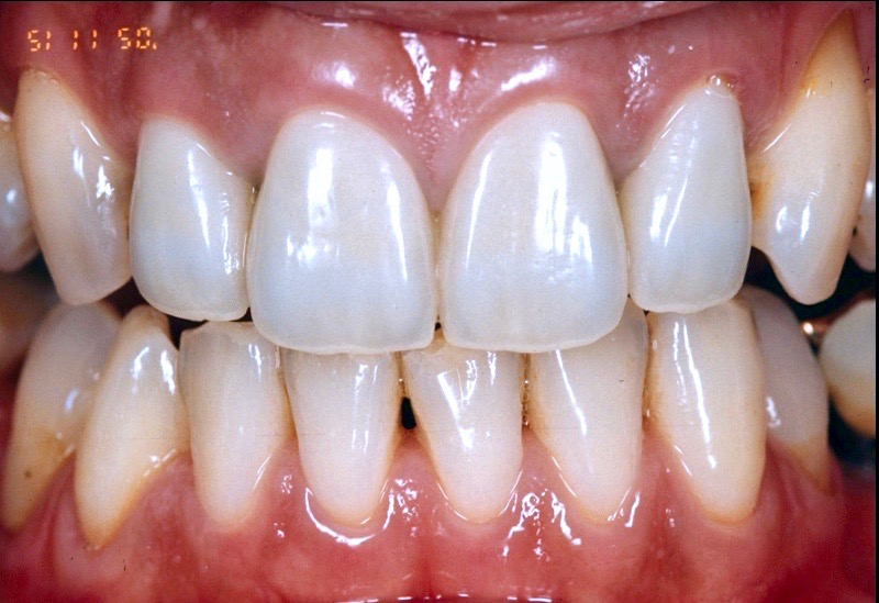 Case-2 After. Completed 4-front tooth metal ceramic crown