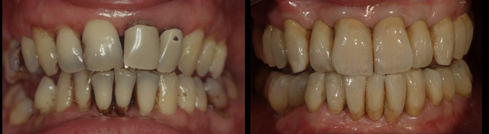 ANGELO, COMPLETE REHABILITATION WITH FELDSPAR CERAMIC CROWNS