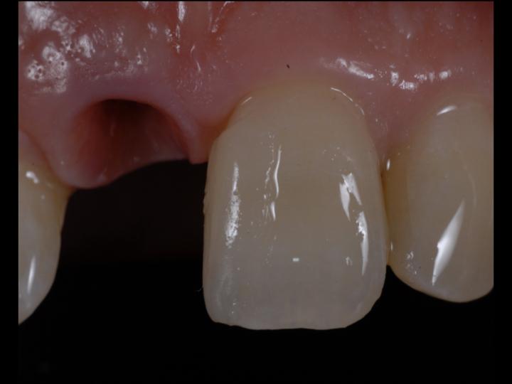 Partial mesial veneer try in before fitting of Zirconia implant