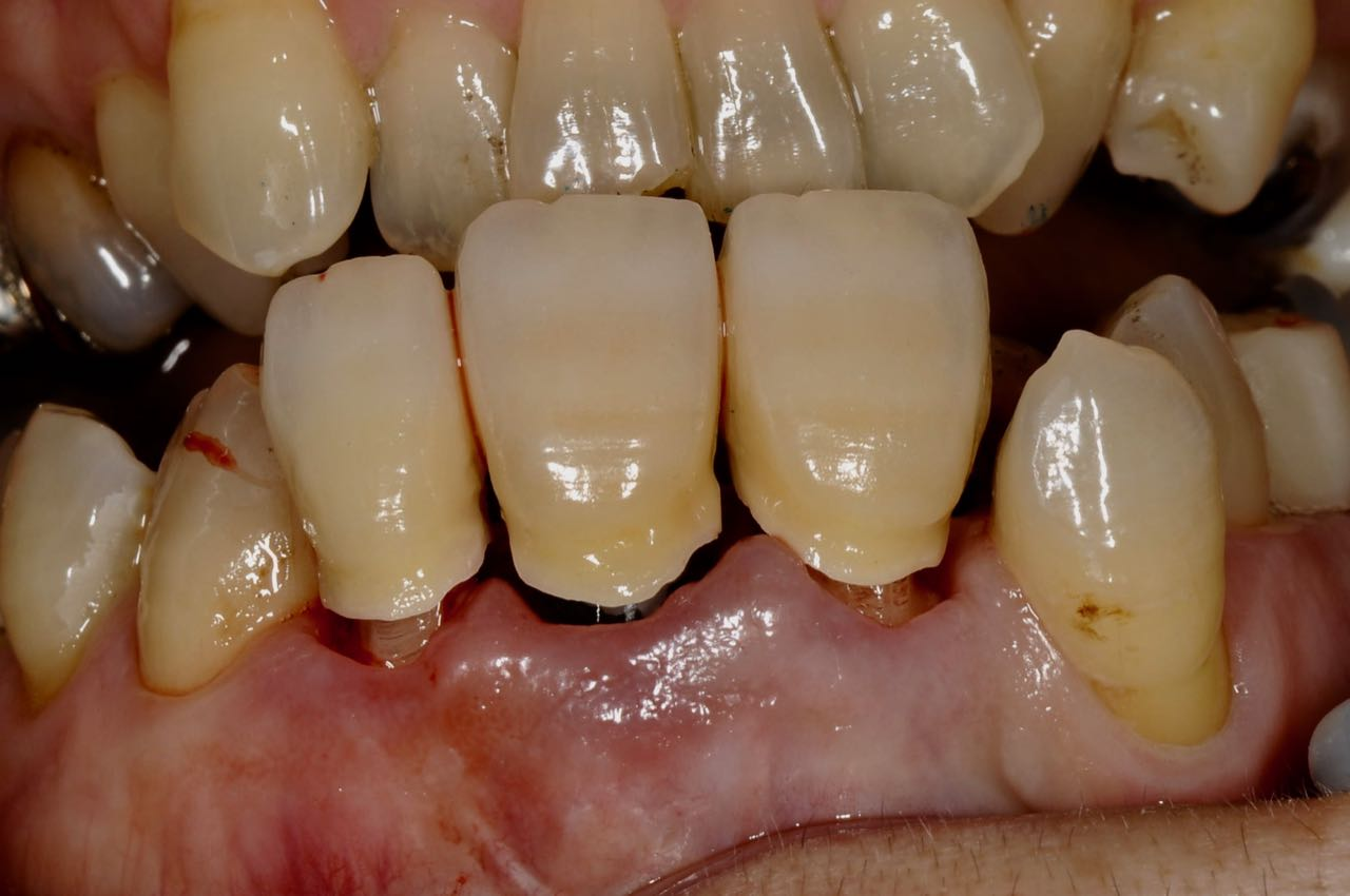 Zirconia crown of three connected unit. Sub-Gingival contour given the appropriate contour