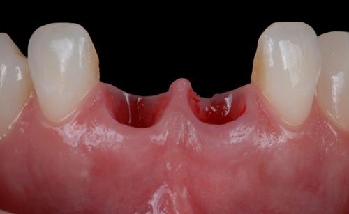 Case-2 Zr crowns. New situation 2019