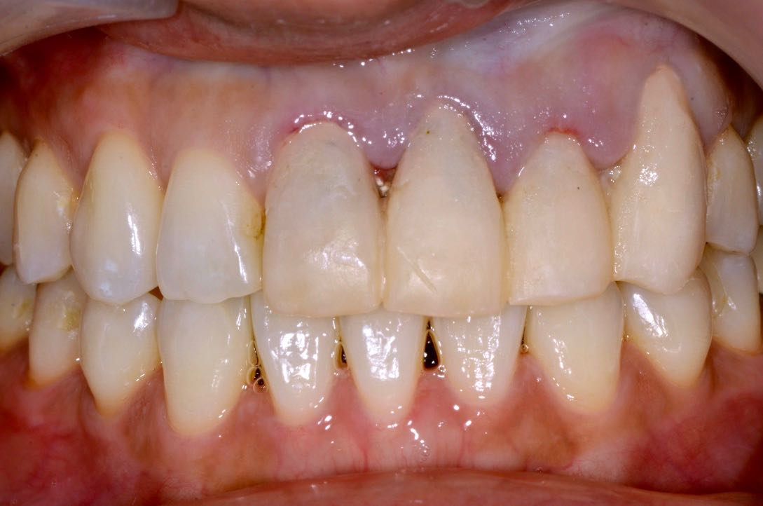 Intraoral cavity with abutment teeth and temporary crown.