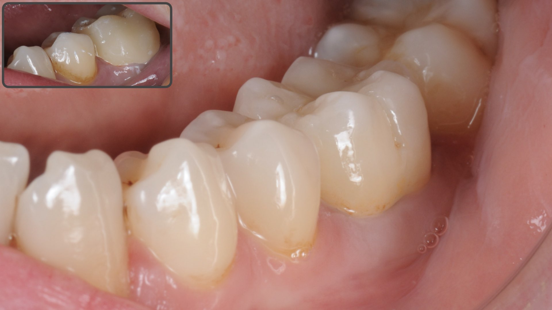 Clinical Case 4, picture 1 :  Improved aesthetics with a zirconia layered restoration on first molar