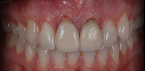 Case-2 Zr crowns. Situation after 7 years
