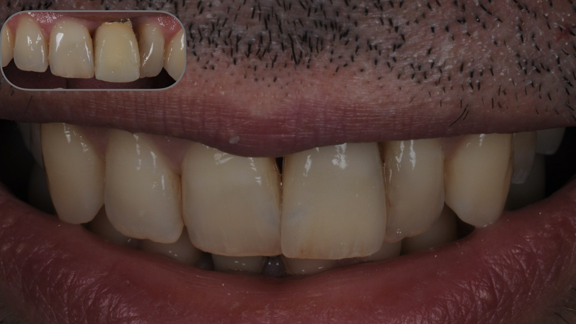 Clinical case 3:  Improved aesthetics with a zirconia layered restoration