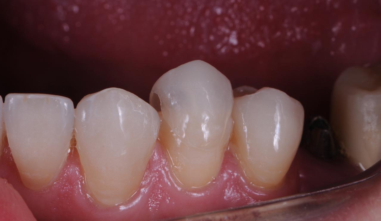 Case-2. 3 No-Prepp Veneers