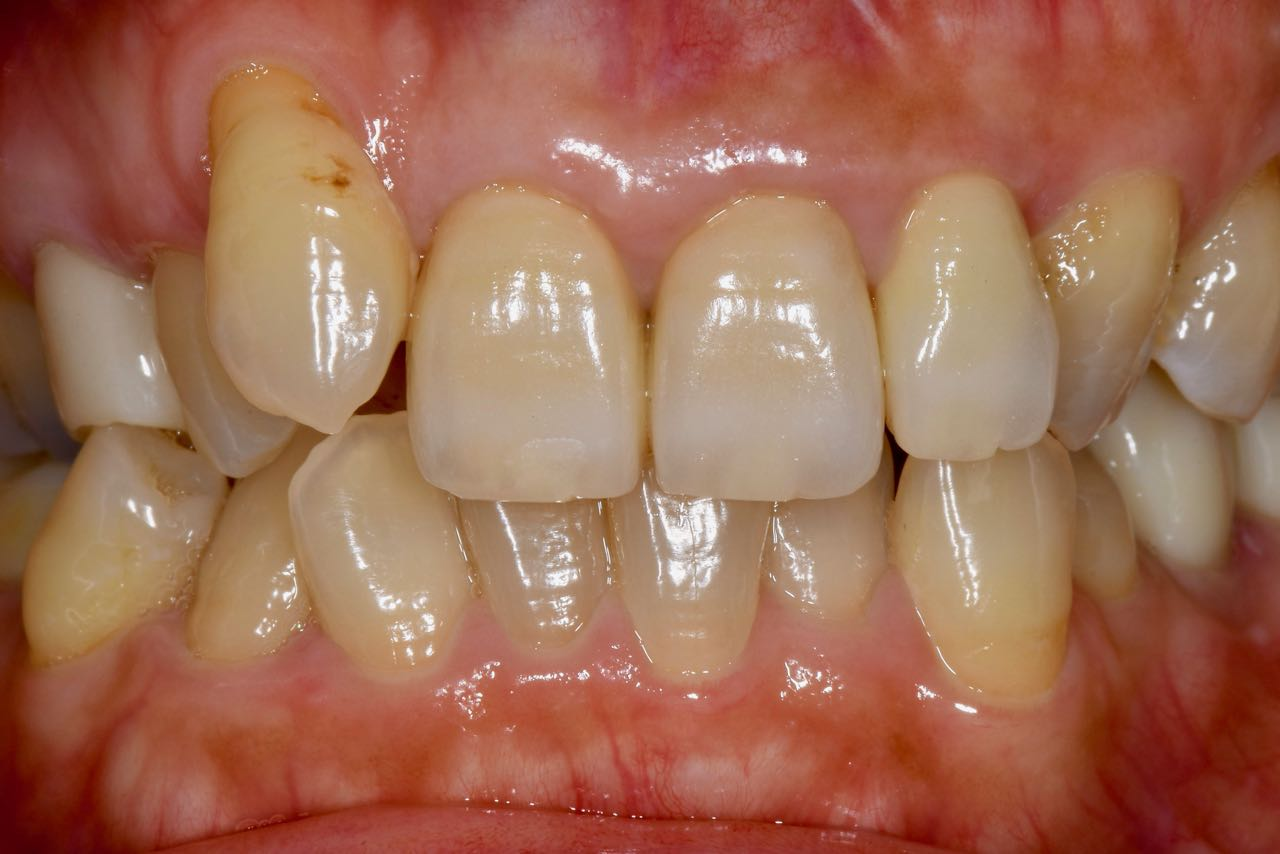Case-3 After. Appropriate cervical line and grown interdental papilla