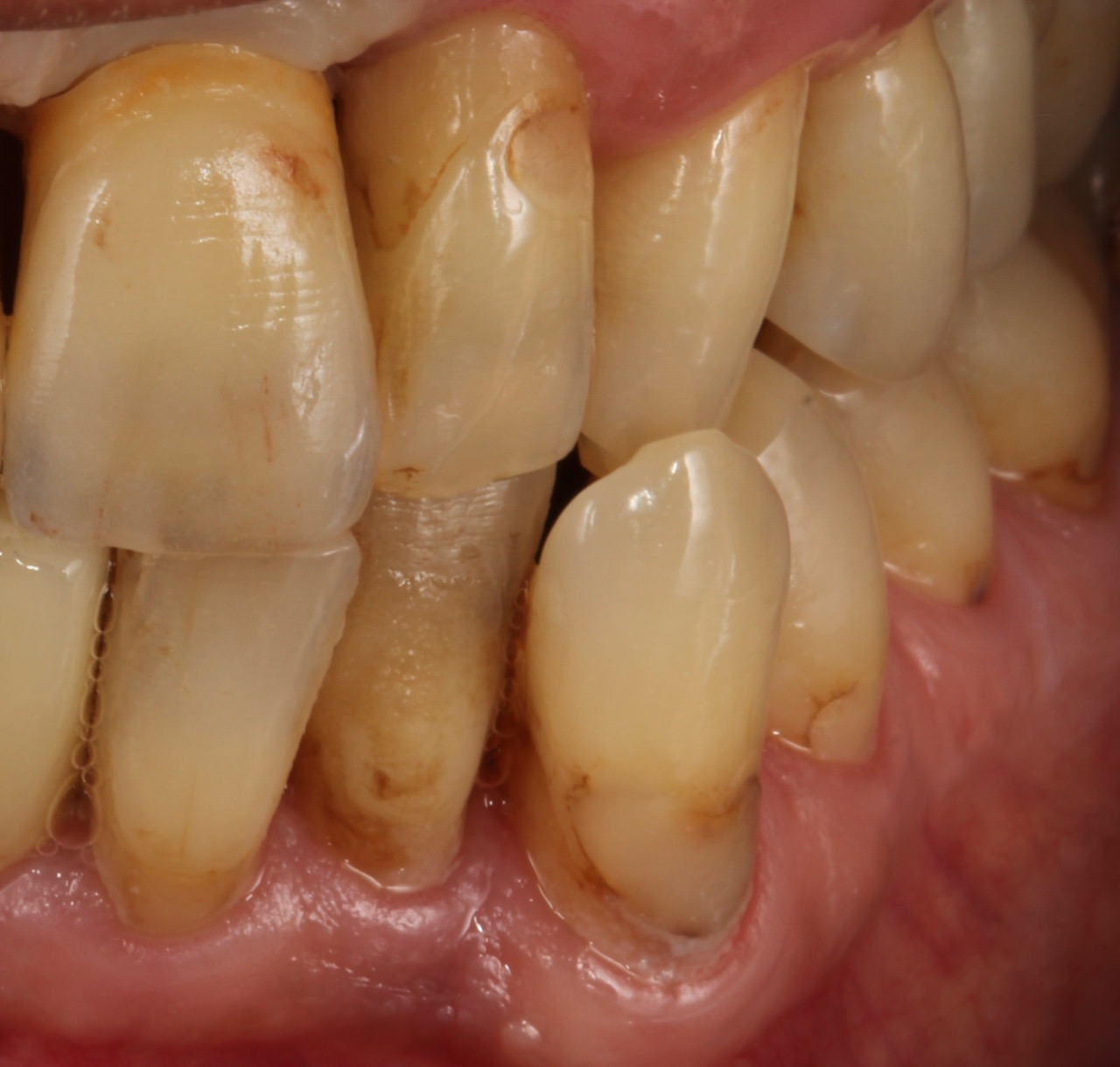 Case-5 After (Single implant)