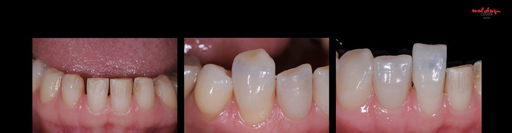 ROSI, TOTAL MIXED REHABILITATION WITH ADDITIONAL CROWNS AND VENEERS IN FELDSPAR CERAMIC