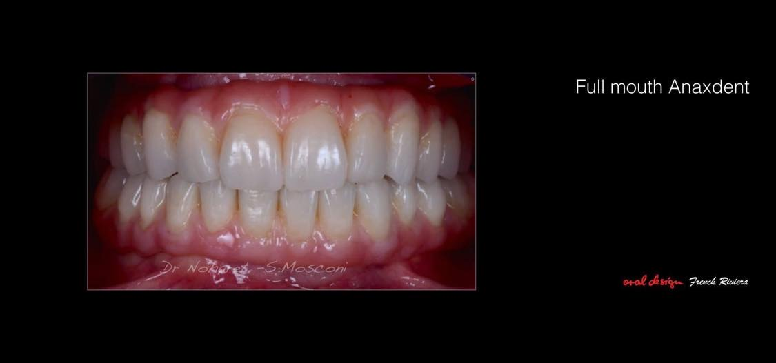 Case-5. Injected composite