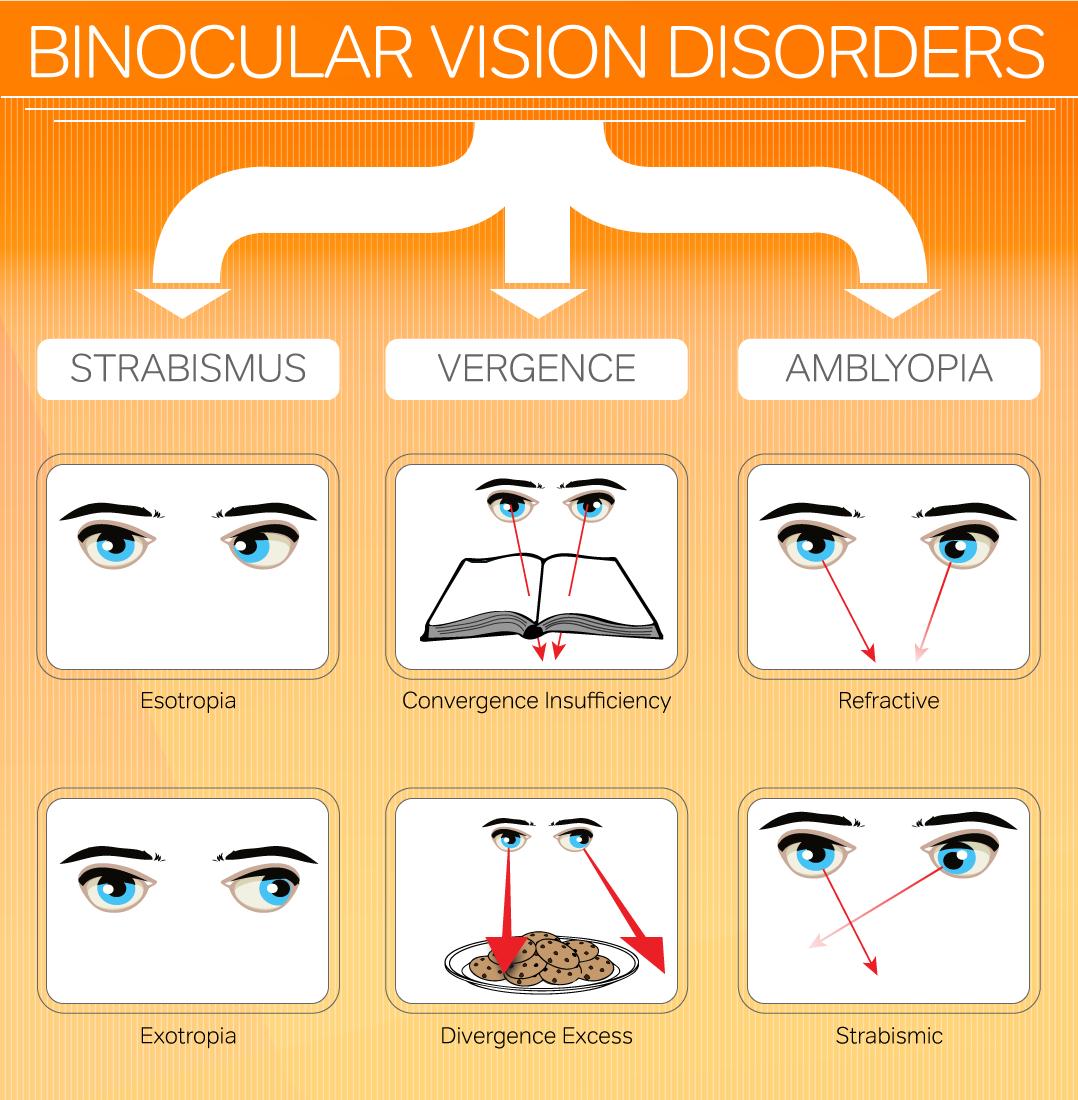 人が立体的にものを見る為に必要な両眼視機能