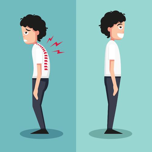 姿勢改善において筋力向上が効果ない理由