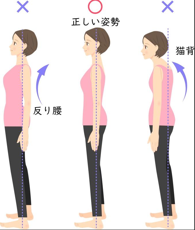姿勢改善で筋肉を鍛える前に行うべきこと