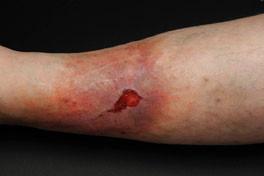 proWund hilft nach Ulcus, Operationen, Dekubitus, schlechte Wundheilung, Ernährung, Verletzung, Verbrennungen und Verbrühungen