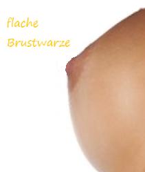 vorhof brust