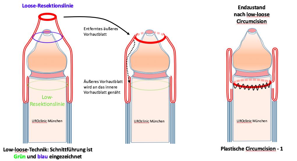 Beschneidung und Zirkumzision: Low-loose Technik