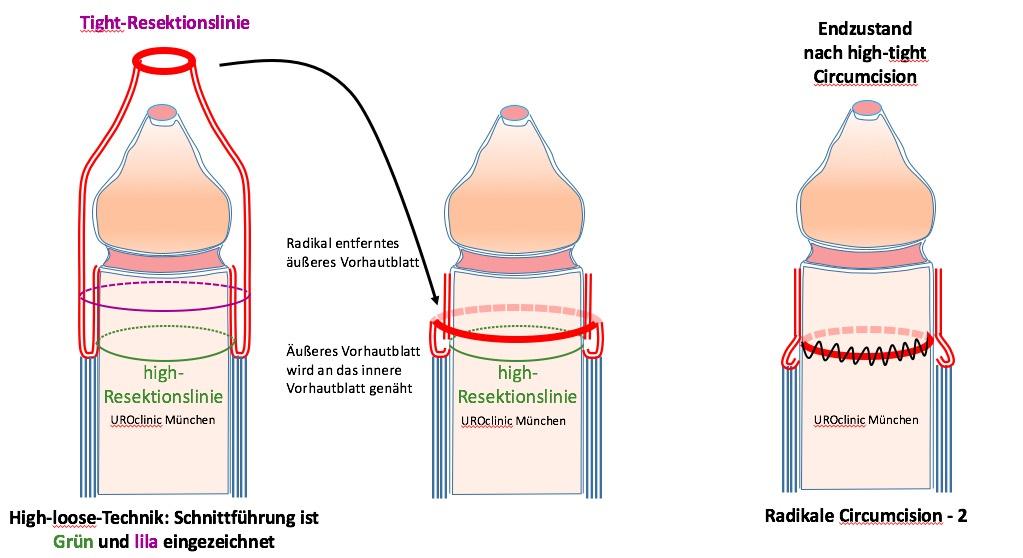 Beschneidung Zirkumzision: high-tight Technik