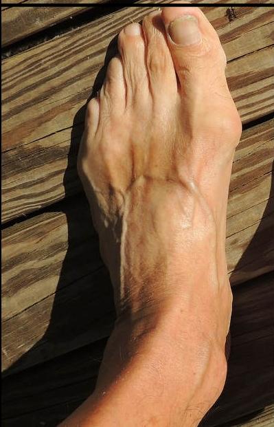 Füße, die leider Schuhe kennen - barfuß