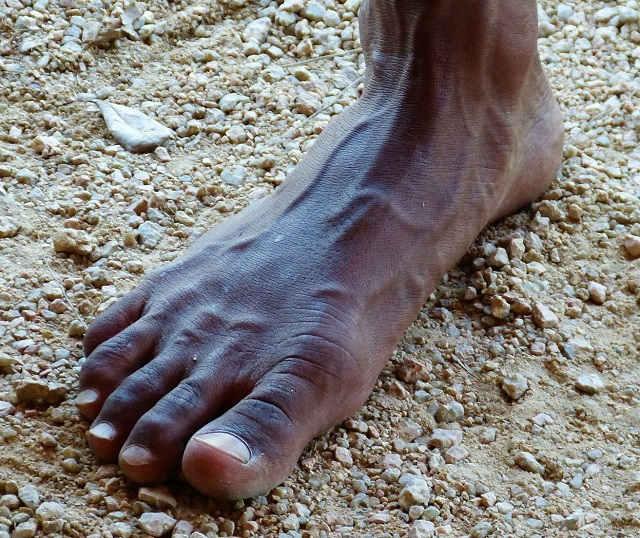 Füße, die keine Schuhe kennen - barfuß