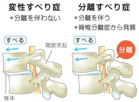 腰椎 分離 症 リハビリ