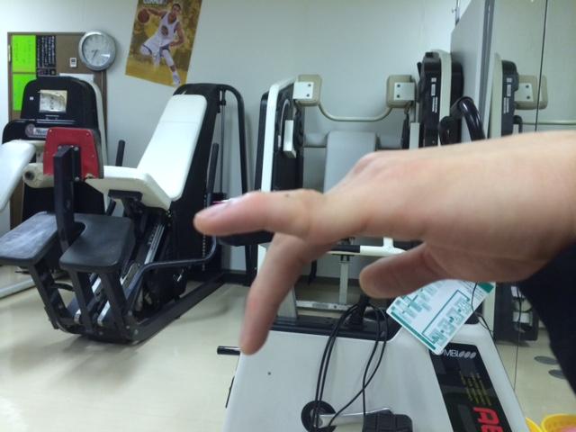 小指の脱臼
