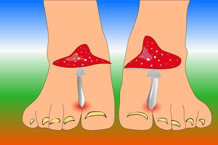 Nagelpilz da hilft nur noch Fußnagelpflege Fußpilz und sein Geruch