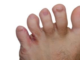 Fußpilz zwischen den Zehen