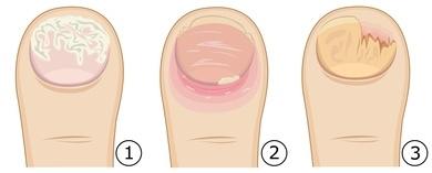 Eine Schimmelpilz Infektion, Hefepilz Infektion und der Nagelpilz