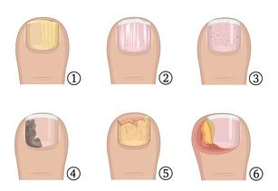 Verschiedene Formen der Schuppenfleche am Zehennagel, Nagelpsoriasis und vom Nagelpilz