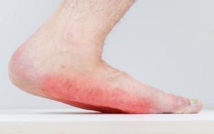 Fußpilz unter der Sohle mit starker Rötung, Behandlung mit Fußpilz Creme nötig