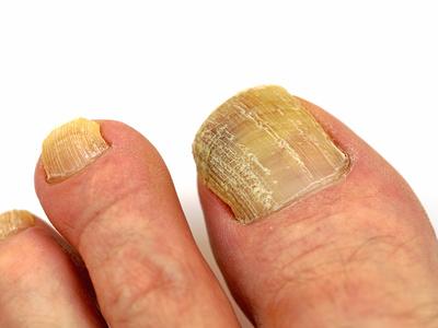 Fußnagelpilz Befall, Nagelpilz am den Fußnägeln