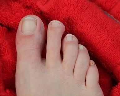 Vom Fußnagelpilz infizierter Fußnagel