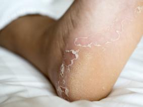 Bei juckenden Fußsohlen kann es sich auch um Fußpilz handeln