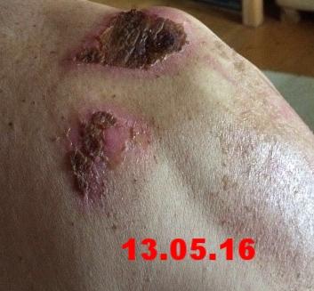 Propolis Anwendungen bei Verletzung