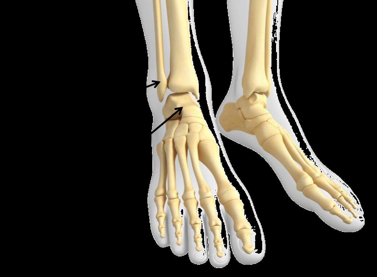 sprunggelenksarthrose - Schuh Orthopaedie